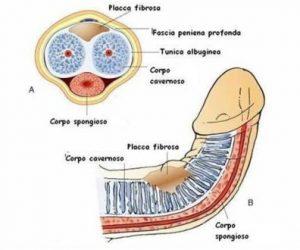 forme di curvatura del pene)